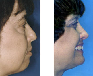 chin-augmentation-colton-center
